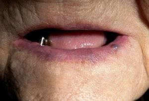 Рот пожилого человека без зубов